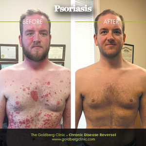 Psoriasis Before and After 1.png