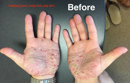 Psoriasis Before.jpg