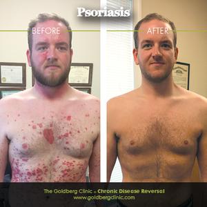 Reverse Psoriasis Naturally.png