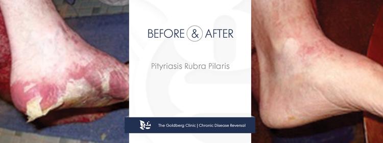 GC-BA_Pityriasis-Rubra-Pilaris.png