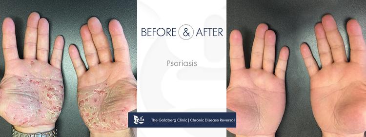 GC-BA_psoriasis-hands.png