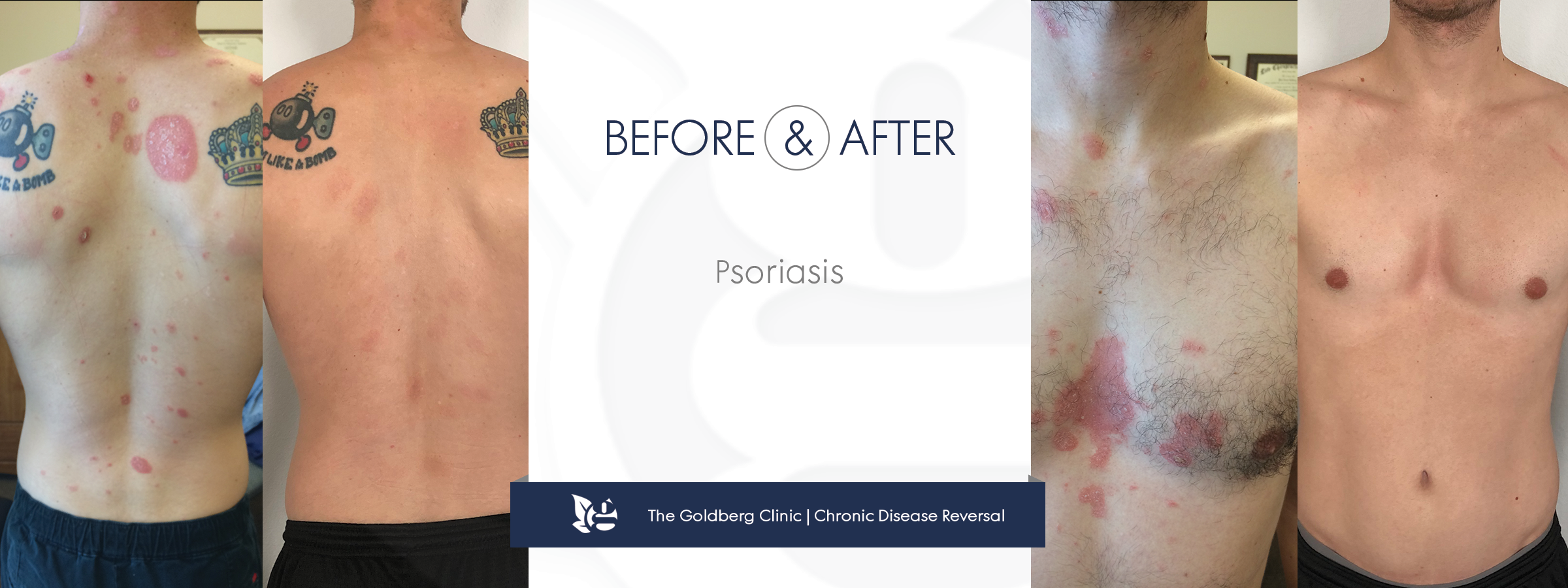 GC-BA_psoriasis0719body.png