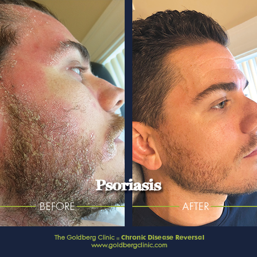 https://www.goldbergclinic.com/blog/2019/7/14/another-successful-reversal-of-psoriasis