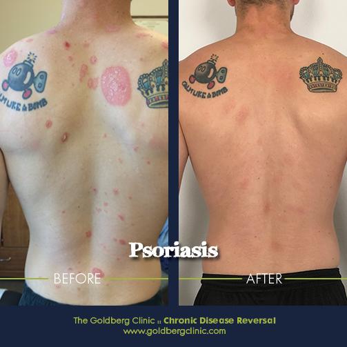 https://www.goldbergclinic.com/blog/2019/7/14/another-successful-reversal-of-psoriasis