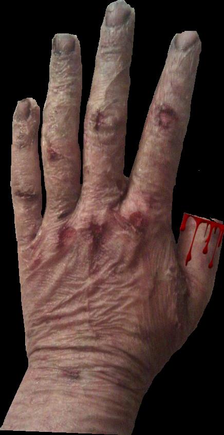 4 1/2 Scars