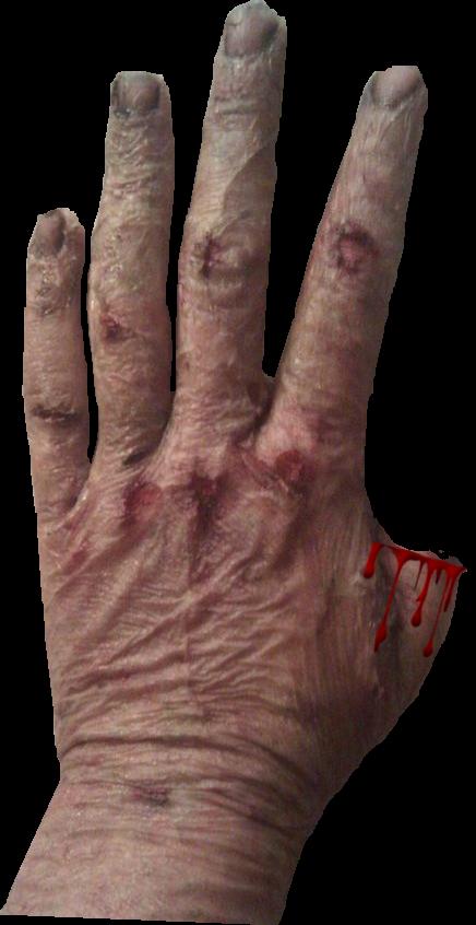 4 Scars