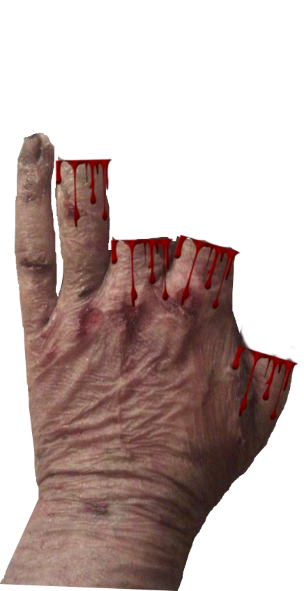 1.5 Scars