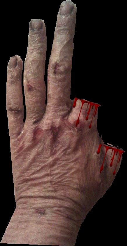 3 Scars