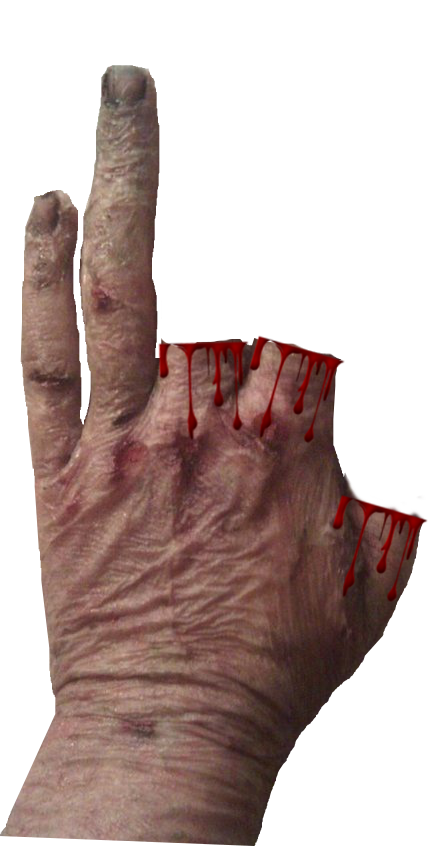 2 Scars