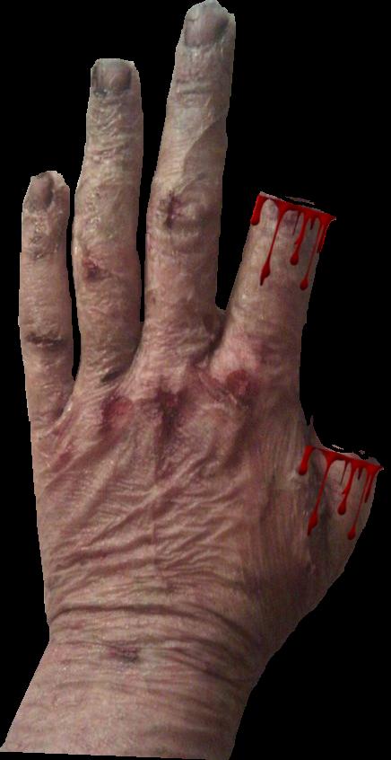 3.5 Scars