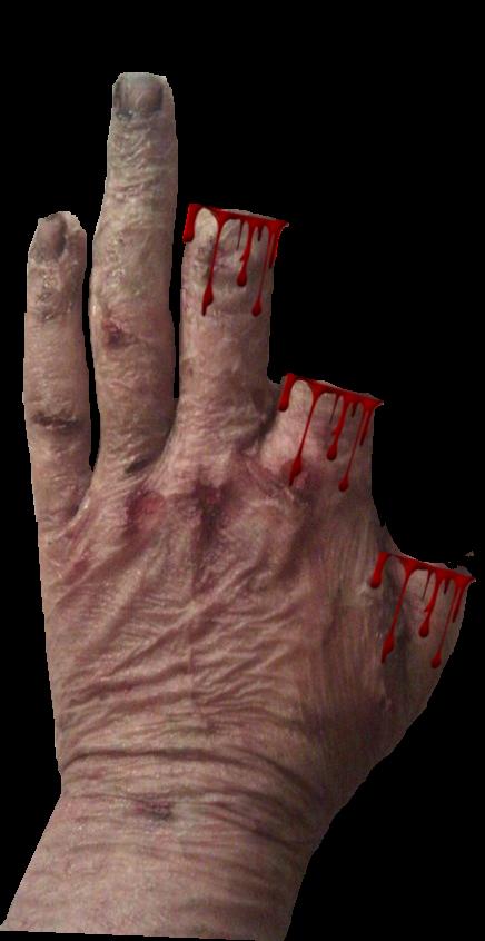 2.5 Scars