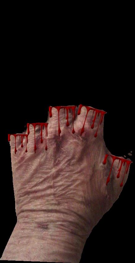 0 Scars