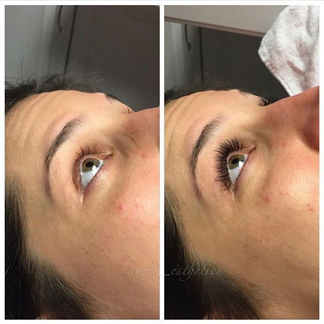 Morning after getting eyelash extensions & looking in the mirror: ⠀⠀⠀⠀⠀⠀⠀⠀⠀⠀⠀⠀ ⠀⠀⠀⠀⠀⠀⠀⠀⠀⠀⠀⠀ ⠀⠀⠀⠀⠀⠀⠀⠀⠀⠀⠀⠀   ⠀⠀⠀⠀⠀⠀⠀⠀⠀ ⠀⠀⠀⠀⠀⠀⠀⠀⠀⠀⠀⠀ I woke up like this, I woke up like this ⠀⠀⠀⠀⠀⠀⠀⠀⠀⠀⠀⠀ ⠀⠀⠀⠀⠀⠀⠀⠀⠀⠀⠀ ⠀⠀⠀⠀⠀⠀⠀⠀⠀⠀⠀⠀ ⠀⠀⠀⠀⠀⠀⠀⠀⠀⠀⠀⠀ #xtremelashes #spa #beauty #winkstudiospa #lashextensions #annapolis #annapolisspa #nomoremascara #lashgameonpoint #longlashes #lashgoals #jomousselli #lashboss #lashlove #annapolislashes #annapolislashtech