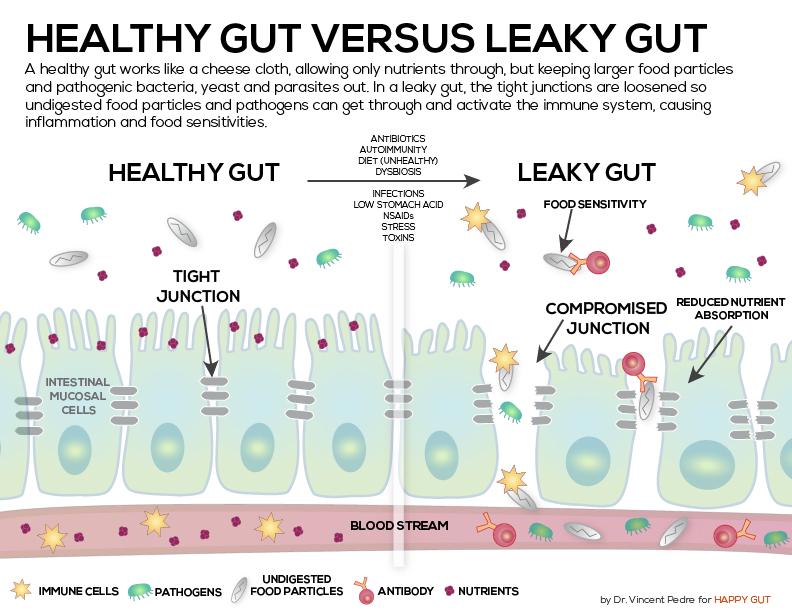 HealthyLeakyGut.jpg