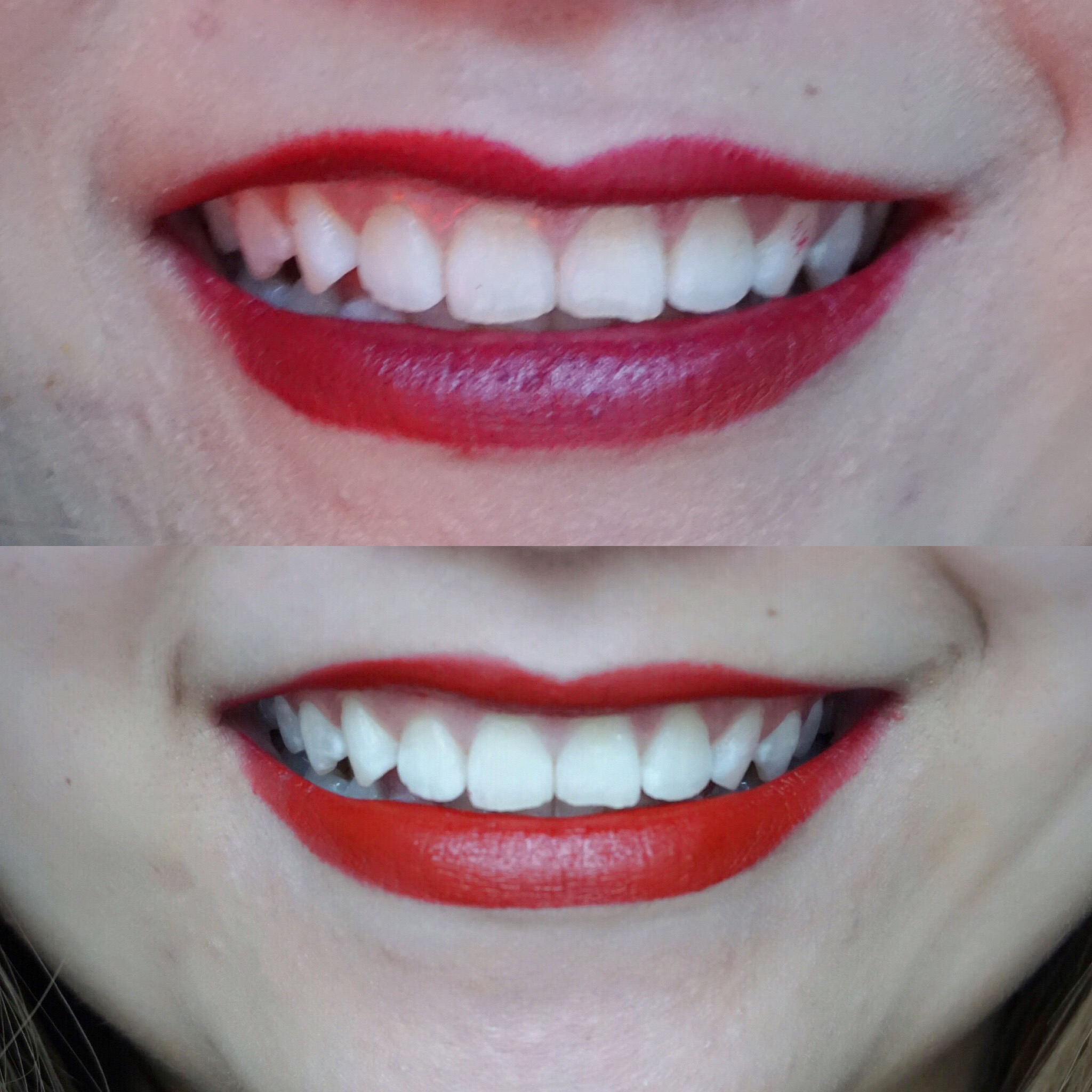 risa xu smile brilliant teeth whitening before after
