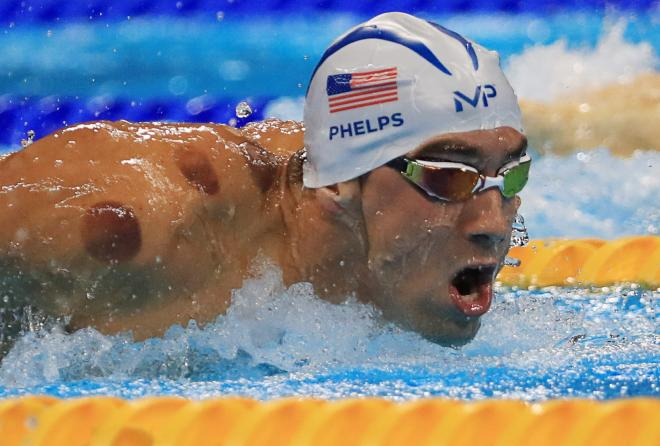 Michael Phelps received cupping therapy performed by a massage therapist prior to his events at the 2016 Rio olympics.