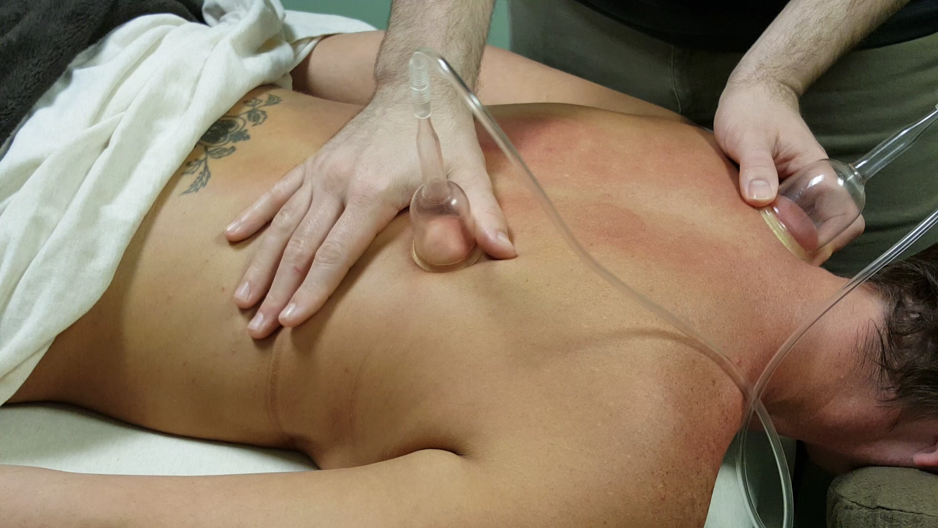 Cupping, Rochester NY - Pain Relief Massage