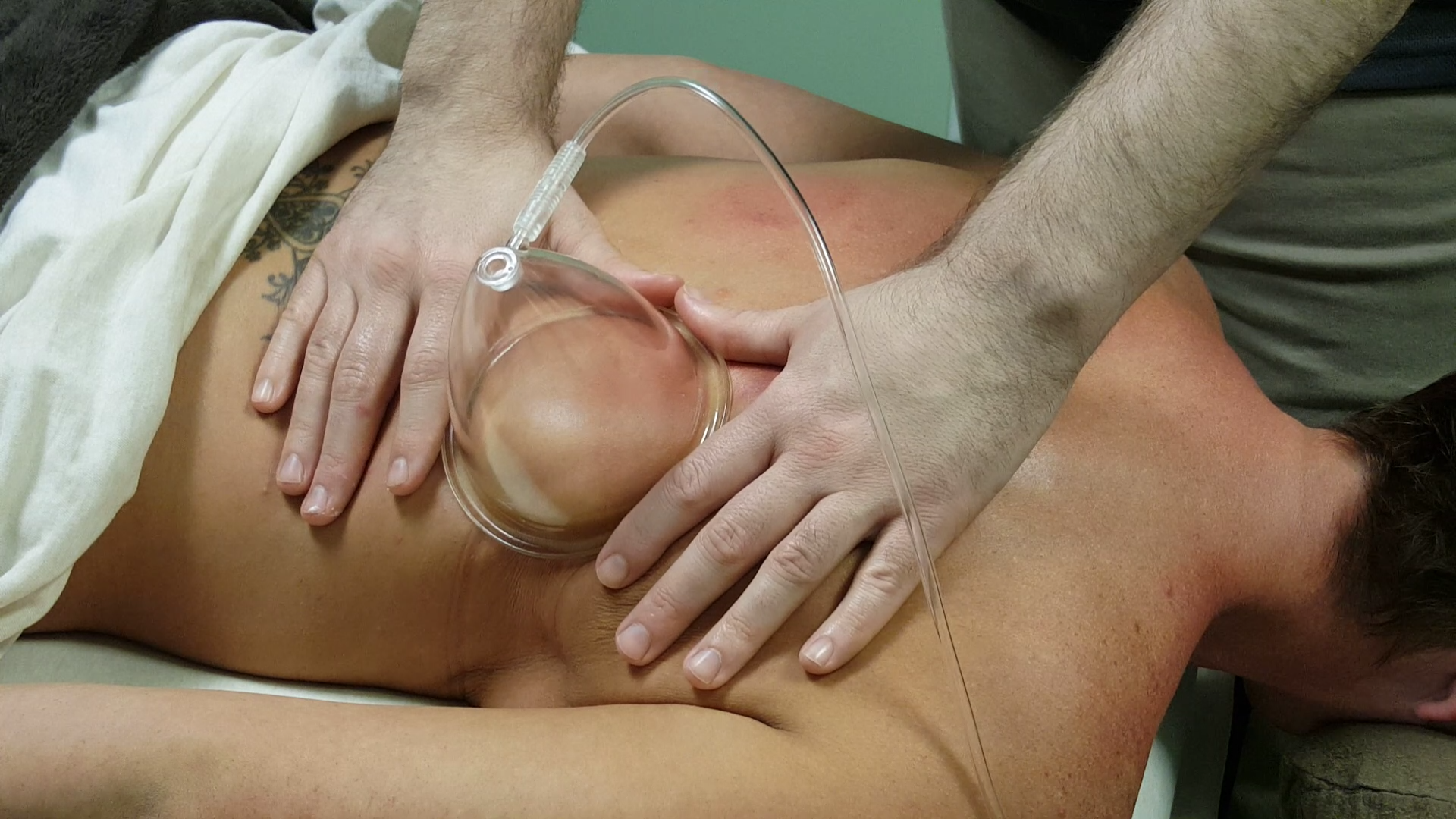 MediCupping - Pain Relief Massage, Rochester, NY