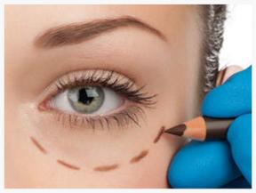 Kom zeker ééns langs als je last hebt van oogwallen en vraag achter advies van onze specialistes.
