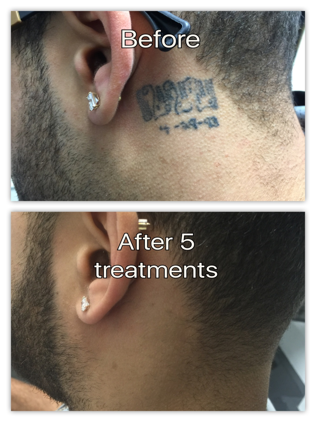 behind ear before and after .jpg