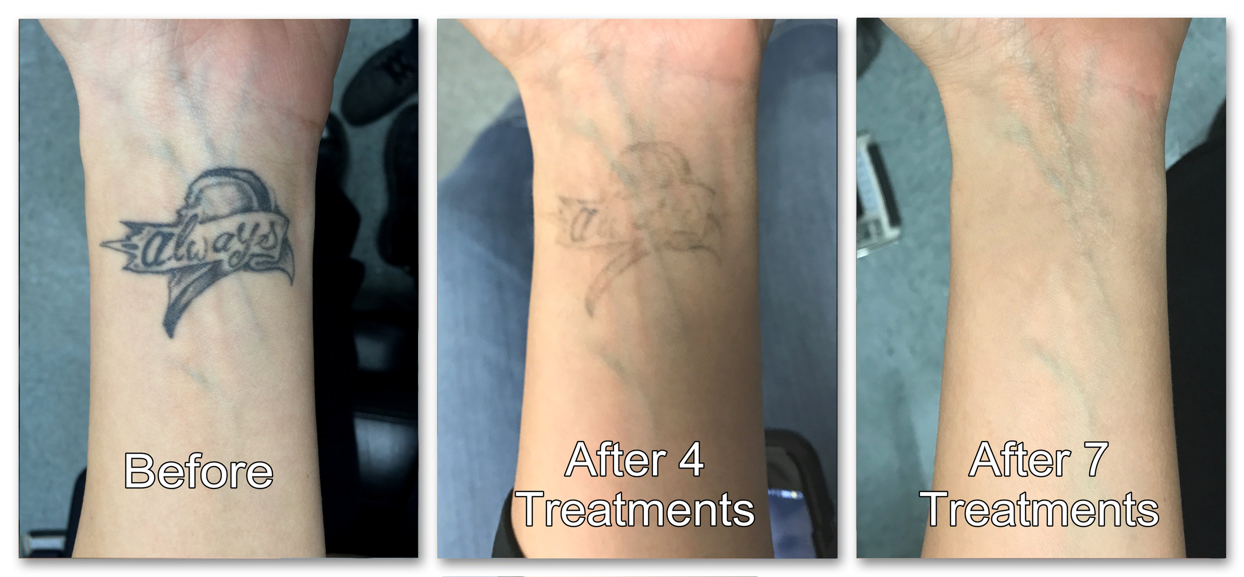 3 frame before and after always tattoo.jpg