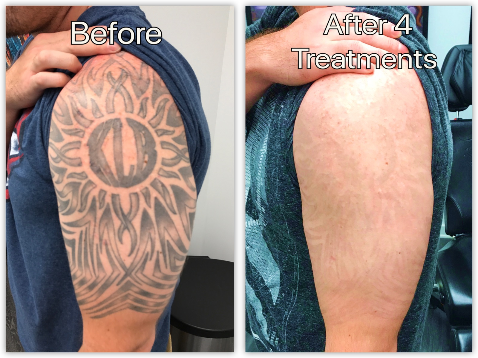 tribal arm before and after .jpg