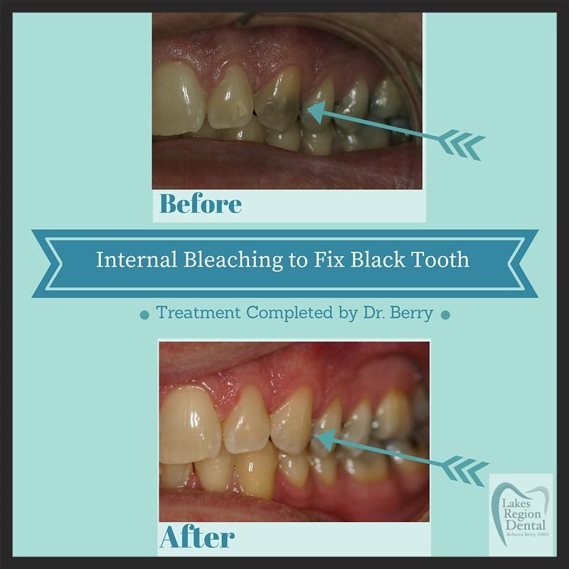Internal Bleaching 2.jpg
