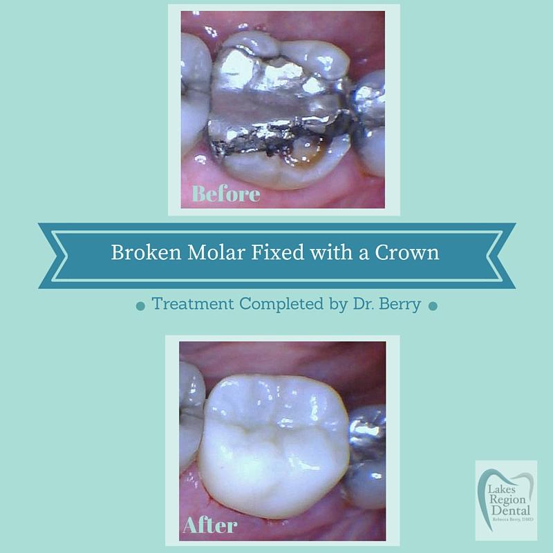 Broken Molar-BruxCrn (1).jpg