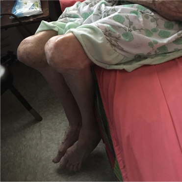 Home visits, like this one to a 90- year old in Lajas, to the most elderly and infirm. Her severe arthritis in arms and legs makes walking impossible