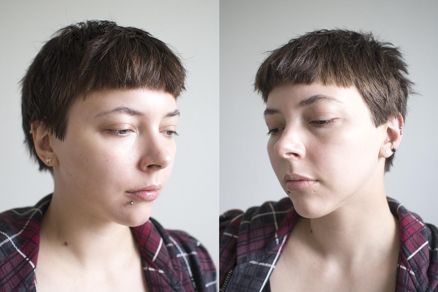 acne-scars-post2.jpg