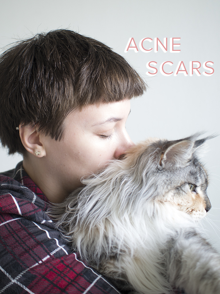 acne-scars-post4.jpg