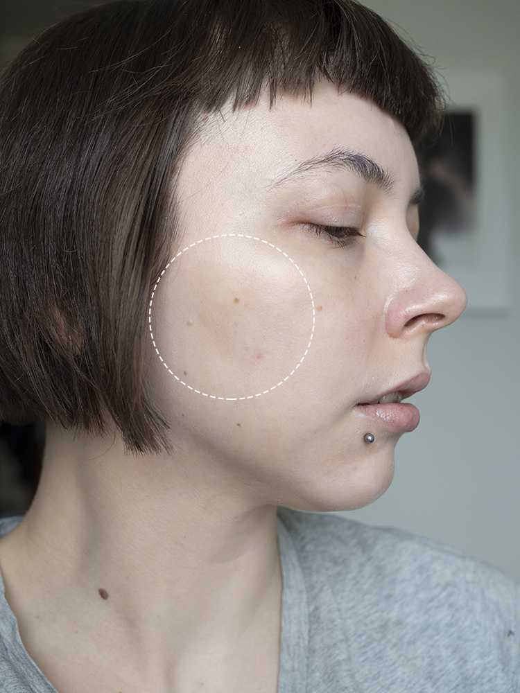 Rebel Helsinki Dermapen 4 Results | Laura Loukola Beauty blog