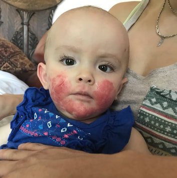 May 2018 \\ After we treated her corn allergy, she had a flare up that lasted about 2 weeks. Her skin was so inflamed, her poopie was sour, it was like it was all coming out at once. But as quickly as it came, it had gone. Her good days became more and more.