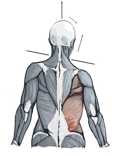 MuscleTensionBackWeb.jpg