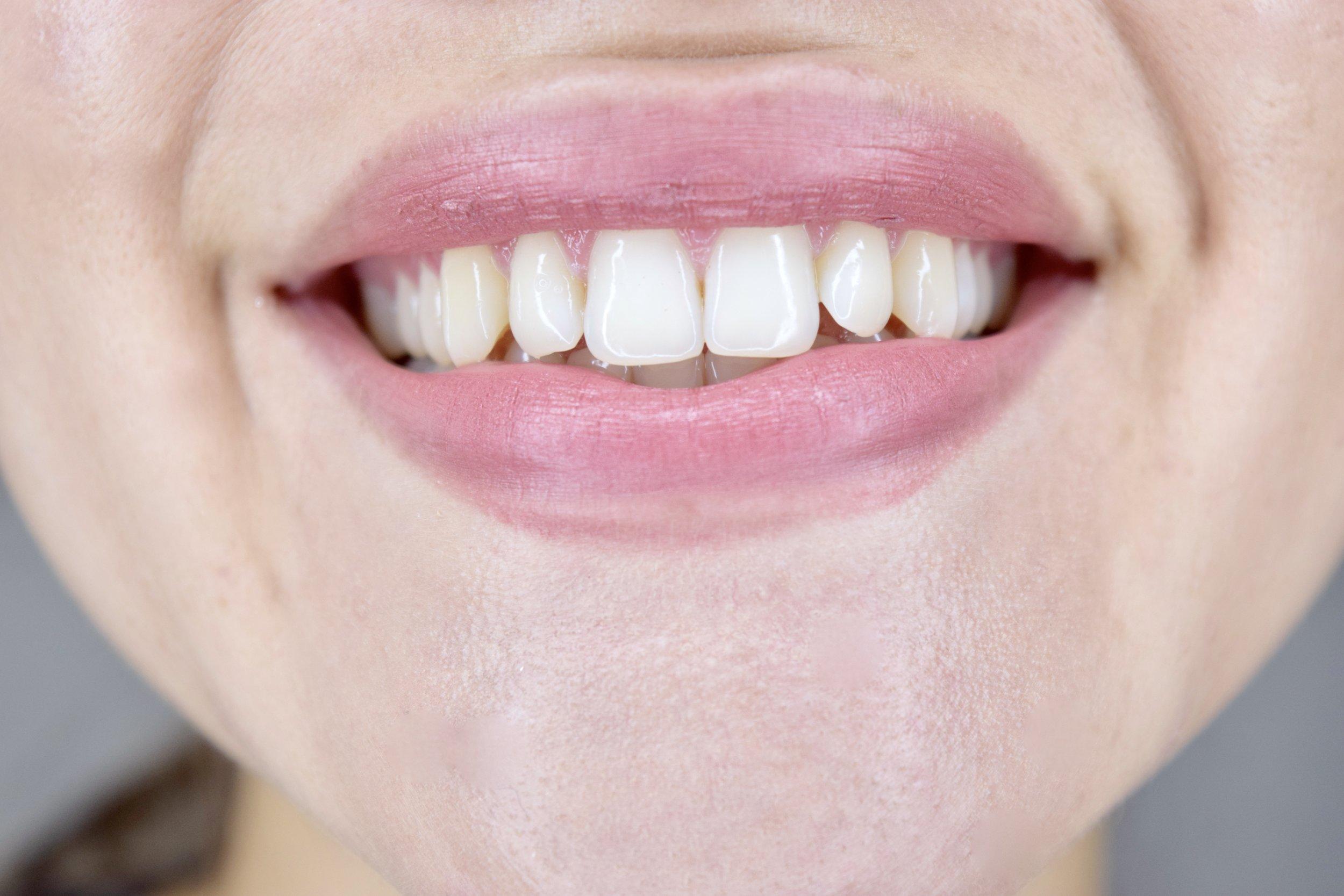 Teeth whitening smile brilliant