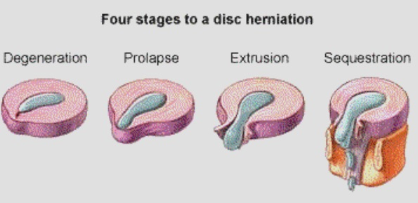 Disc herniation Precision Movement