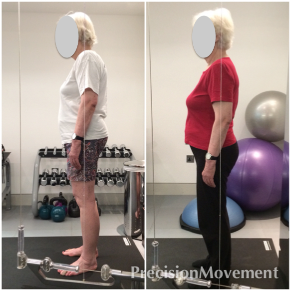 Precision Movement Case Study Mrs A before and after photos
