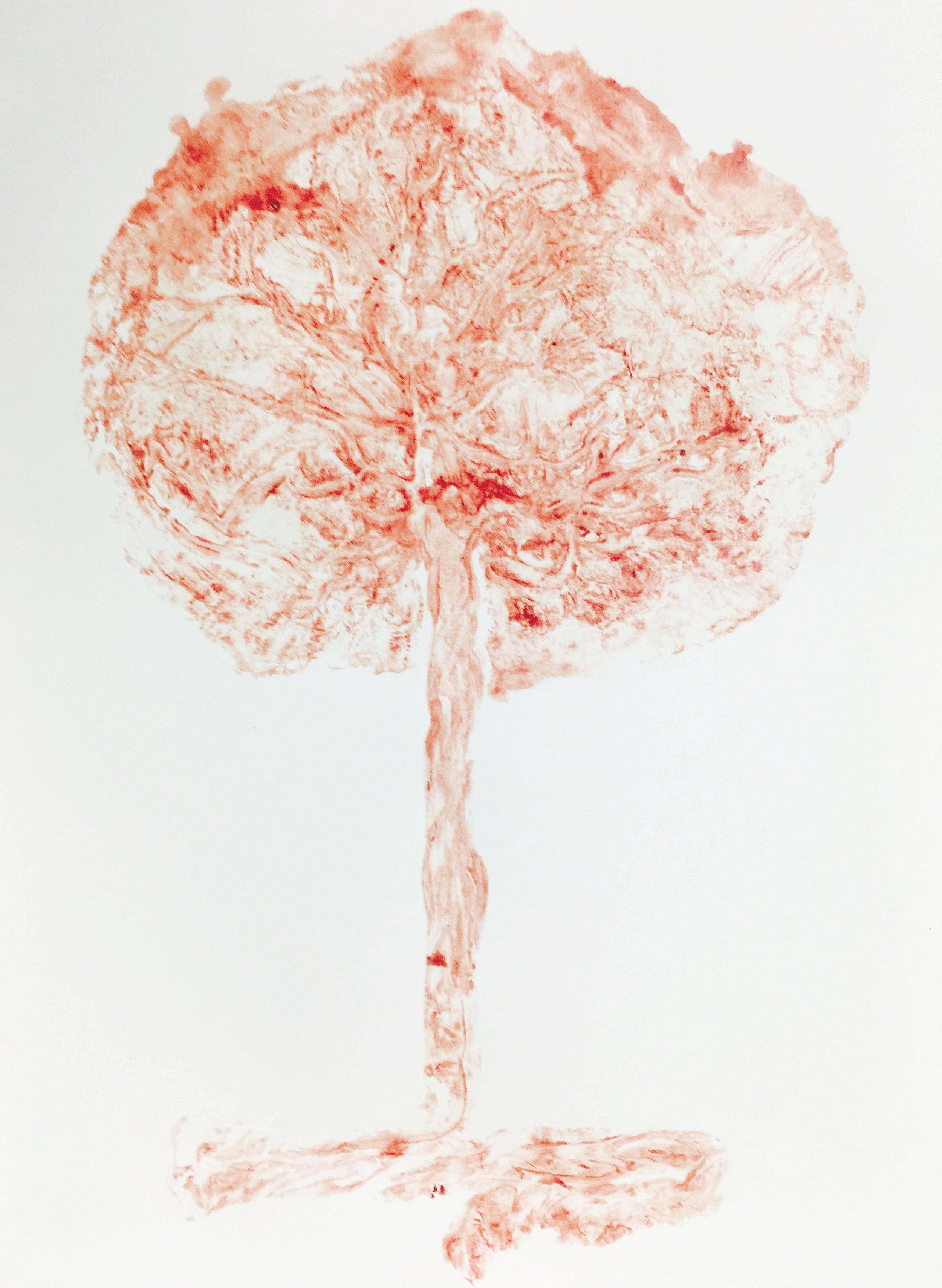 PlacentaArt.jpg