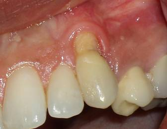 Pre-op picture displaying severe recession of the gum.   The patient   was   very unhappy with the appearance.