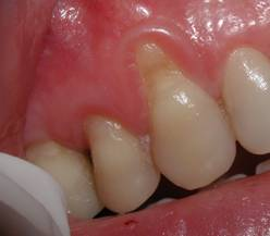 "Pre-Op photo showing severe recession of the gum. This had the appearance of a ""fang"""