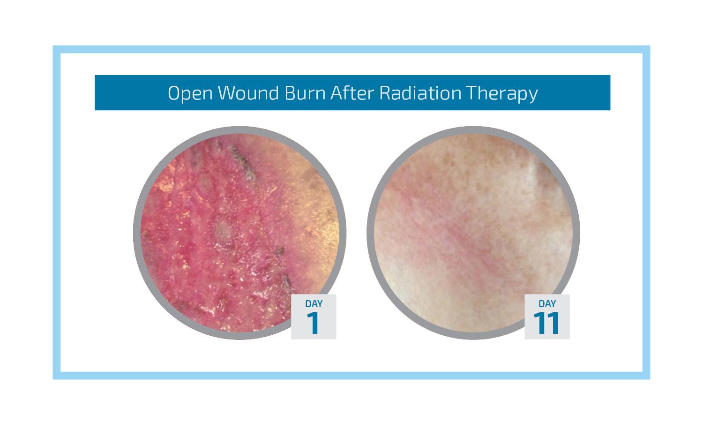 Open Wound Radiation Burn Graphic.jpg