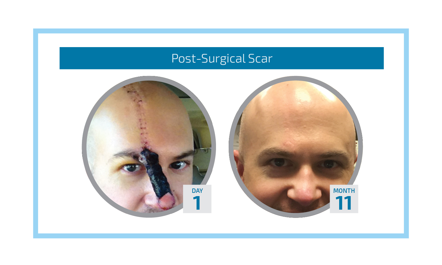 Post Surgical Scar Graphic.jpg