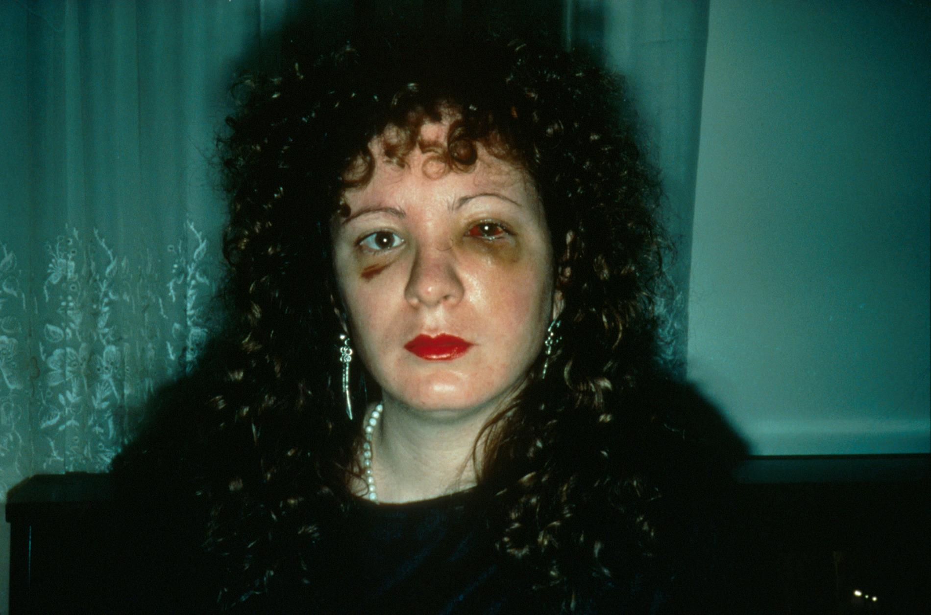 Nan Goldin,  Nan one month after being battered,   1984