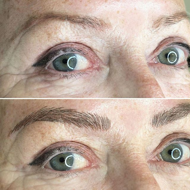 Gave this client brows that are thicker and fuller than what little hair she had previously. There is a slight bit of makeup on the skin in the before section, so make sure you check out the video on my story/highlight to see what they looked like without💫⠀ .⁣⠀ .⁣⠀ .⁣⠀ #carascottcosmetics #microblading #phibrows #brows #phiacademy #semipermanentmakeup #eyebrows #microbladingeyebrows #beauty #micropigmentation #eyebrowtattoo #3dbrows #microbladingbrows  #cosmetictattoo #eyebrowsonfleek #browgoals #browgame #mircobladinglondon