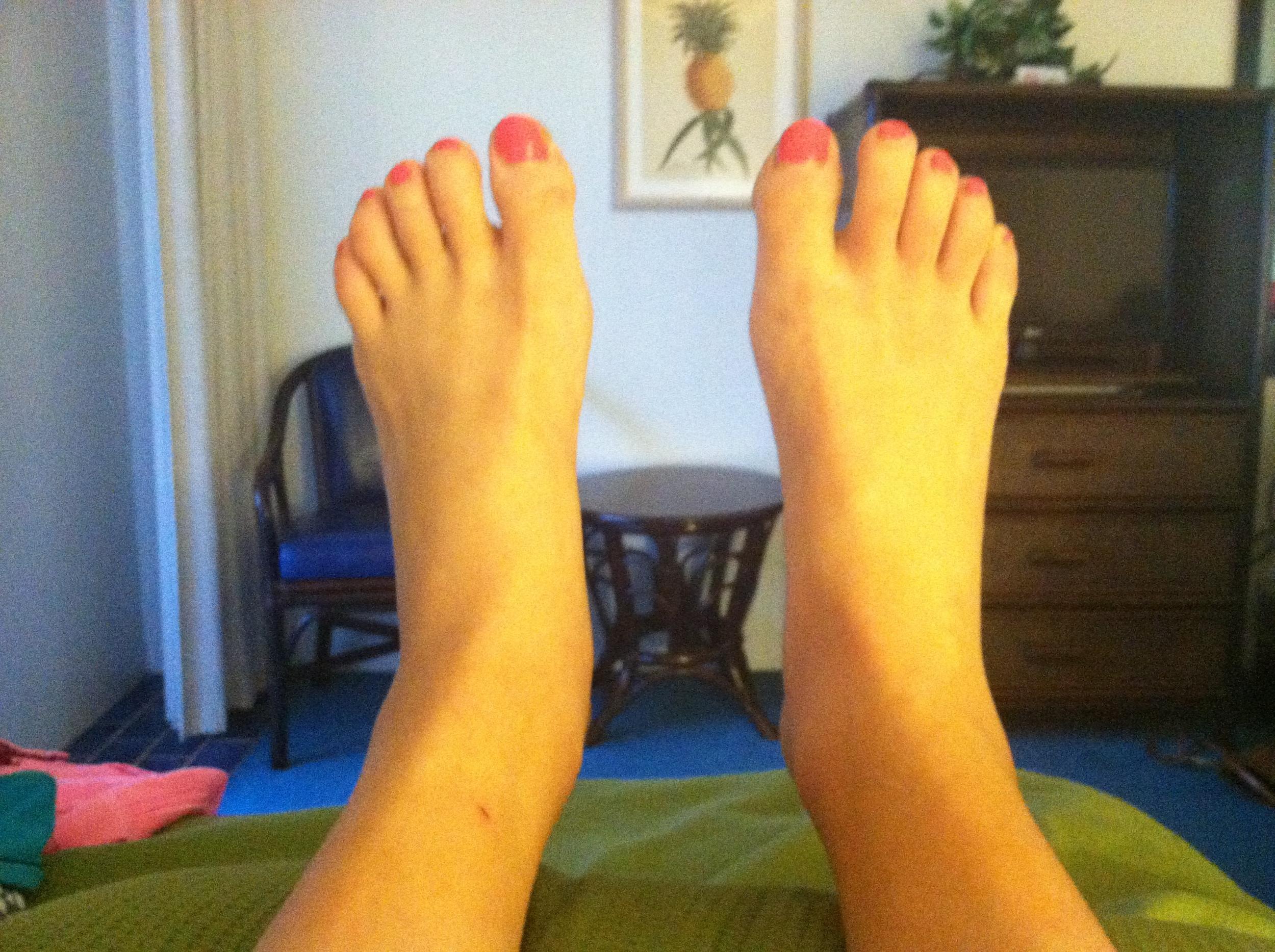 Big, swollen, sausage feet.