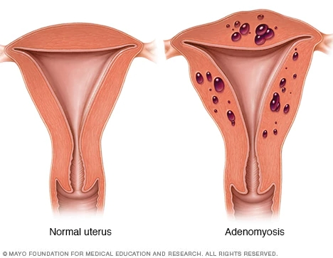 Útero normal (à esquerda) e útero com adenomiose (à direita) - https://www.mayoclinic.org/diseases-conditions/adenomyosis/symptoms-causes/syc-20369138