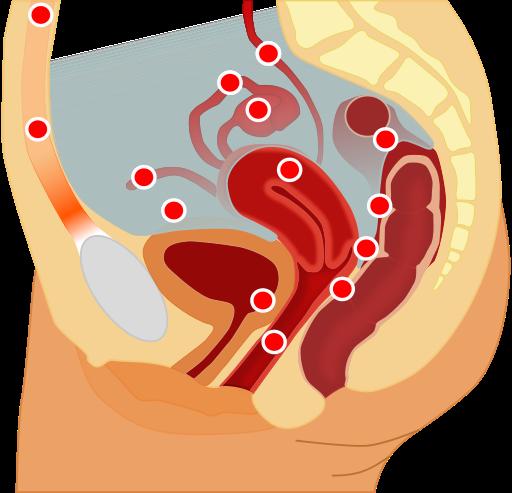 Locais mais comuns de aparecimento de focos de Endometriose (externamente ao útero) ou de Adenomiose (na parede uterina) -  Imagem: Hic et nunc / Tsaitgaistderivative via    Wikimedia Commons   .