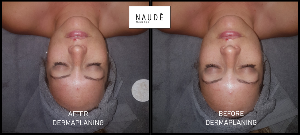 Before and After Dermaplaning.png