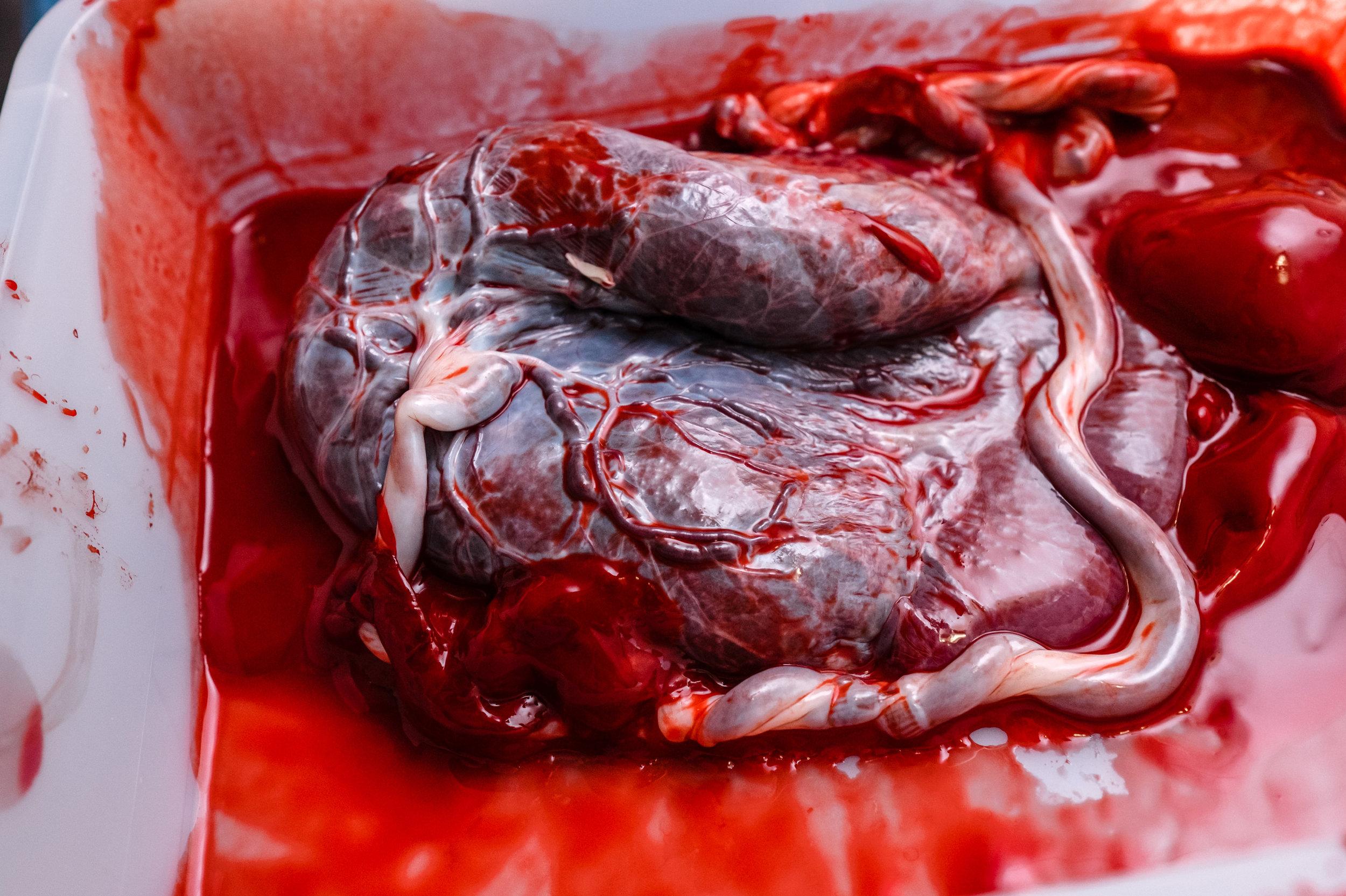 placenta-birth-photographer-vancouver-veins-umbilical-cord