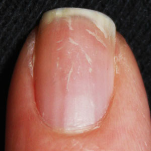 Damaged-Nail